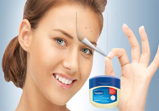 ۵ خاصیت وازلین برای پوست